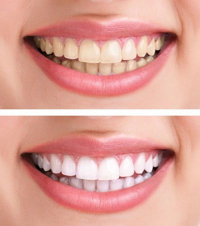 Teeth whitening from Malta dentist